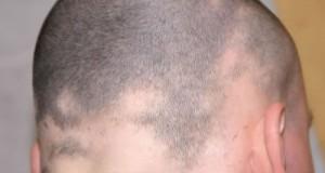 Qué es la alopecia areata