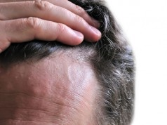 Qué es la dermatitis seborreica
