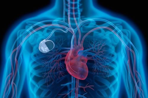 que-es-una-arritmia-cardiaca